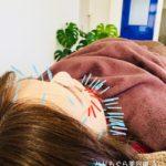 岐阜市で美容鍼、美顔鍼が気になったらアクア治療院へ
