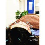 岐阜で美容鍼、小顔、リフトアップ、たるみが気になったらアクア治療院へ