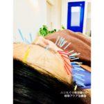 岐阜 美容鍼、美容はり、小顔、リフトアップ効果をお探しならアクア治療院へ