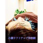 岐阜市で美容鍼、美顔鍼、小顔、リフトアップをご希望ならアクア治療院へ