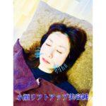 岐阜で美容鍼、美顔鍼、リフトアップをしたいならアクア治療院へ