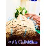 岐阜市で美容鍼、美顔鍼、ほうれい線、リフトアップをするならアクア治療院へ