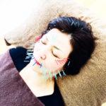 岐阜市で美容鍼、美顔鍼、30、70、100、150、200本まで選択可能なのがアクア治療院