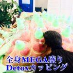 岐阜市で全身MEGA盛りDetoxカッピングはアクア治療院のオリジナルです。