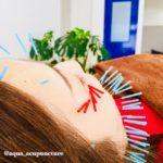 岐阜市で美容鍼、美顔鍼、美容鍼灸をお探しならアクア治療院へ