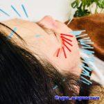 岐阜市で美容鍼、美顔鍼、美容鍼灸をされるならアクア治療院へ