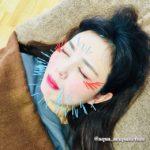 岐阜市で美容鍼、美顔鍼、ほうれい線、フェイスライン、目の下のたるみが気になったらアクア治療院へ