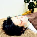 岐阜市のアクア治療院では、美容鍼、美顔鍼で美肌ケアを行なっています。