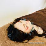 岐阜市のアクア治療院は、美容鍼、美顔鍼、リフトアップ、ほうれい線ケアを得意としています。