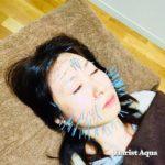岐阜市で美容鍼、美顔鍼、小顔、リフトアップをするならアクア治療院へ