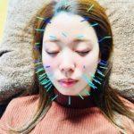 岐阜市で美容鍼、美顔鍼、ほうれい線、フェイスラインや目の下のたるみが気になったらアクア治療院へ
