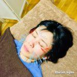 岐阜市で美容鍼、美顔鍼、目の下のたるみ、ほうれい線が気になったらアクア治療院へ
