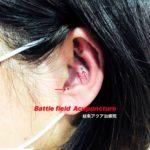 岐阜市でアメリカ軍が使用する戦場鍼、Battlefield Acupuncture、耳鍼ダイエットするならアクア治療院へ