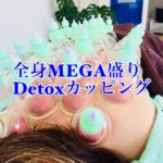岐阜市でカッピング、吸い玉、コロナ疲れ、コロナストレス、肩こり、腰痛ならアクア治療院へ