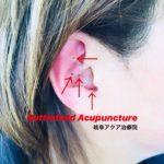 岐阜市で耳つぼダイエット、耳鍼、ギックリ腰、五十肩、坐骨神経痛、痛み、Battlefield Acupunctureのことならアクア治療院へ