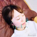 美容鍼、美顔鍼にご興味があるなら岐阜市のアクア治療院へ
