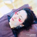 美容鍼、美顔鍼、小顔効果、リフトアップ、ほうれい線、フェイスラインが気になったら岐阜市のアクア治療院へ