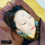 岐阜市で美容鍼、目の下のたるみ、ほうれい線、フェイスライン、マリオネットラインが気になったらアクア治療院へ