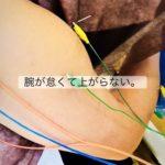 岐阜市で五十肩、腱鞘炎、手足のしびれ、寝違い、肩こりならアクア治療院へ