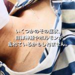 岐阜市で自律神経失調症、肩こり首こり、偏頭痛、めまい、立ちくらみでお悩みならアクア治療院をお薦めします。
