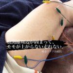 岐阜市でスポーツ鍼、ランナー膝、股関節周辺の強張り、臀部痛でお悩みならアクア治療院をお薦めします。