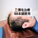 薄毛治療100本鍼使用の頭皮鍼は、岐阜市のアクア治療院でお受けできます。