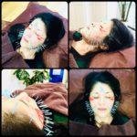 美容鍼、美顔鍼、ほうれい線、目の下のたるみや小じわが気になったら岐阜市のアクア治療院へ