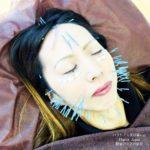 岐阜市で美容鍼、美顔鍼、再生医療、創傷治癒効果を実感するならアクア治療院へ