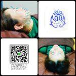 岐阜市で美容鍼、美顔鍼、美容鍼効果が気になるならアクア治療院へ
