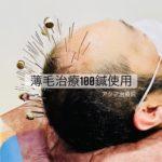 薄毛でお悩みの方、100本の鍼使用する頭皮鍼をお試しください。