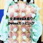 岐阜市で全身MEGA盛りカッピング、吸玉、肩こり、腰痛が気になったらアクア治療院へ