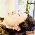 美容鍼、リフトアップ、ほうれい線、お顔の弛みが気になるなら岐阜市のアクア治療院へ
