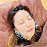 岐阜市で美容鍼、ほうれい線、リフトアップ、お顔の弛みが気になったらアクア治療院へ